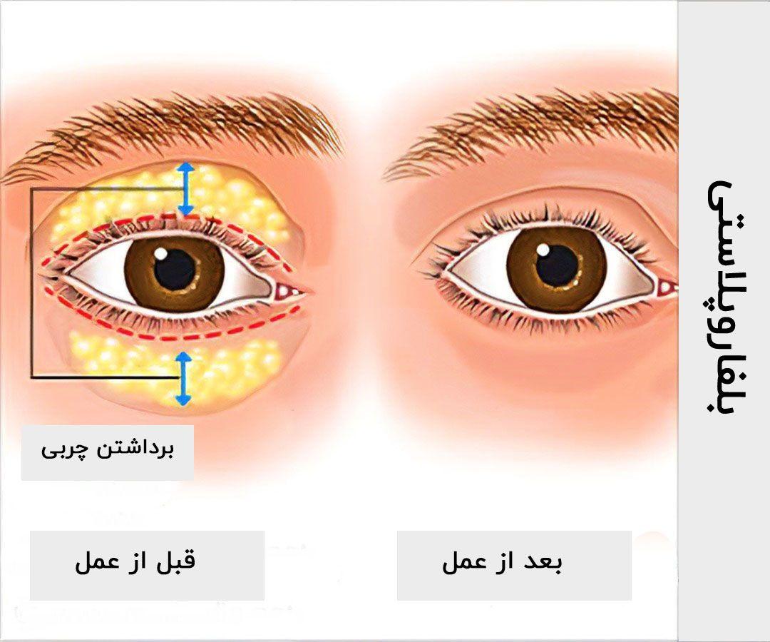 توصیههای یک جراح درباره عمل زیبایی پلک