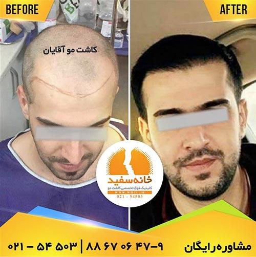 محدودیتهای موجود در روشهای مختلف کاشت مو